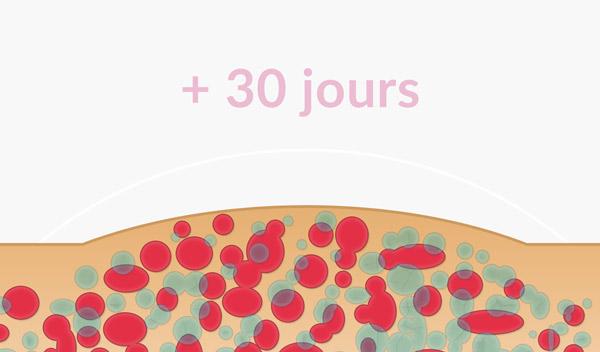 Disparitions des cellules graisseuses